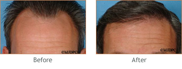 Hair Transplant before and after 2