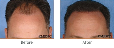 Hair Transplant before and after 3