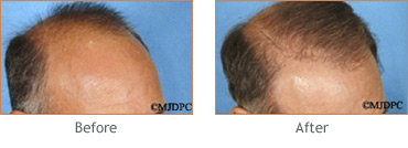 Hair Transplant before and after 5