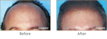 Hair Transplant before and after 9
